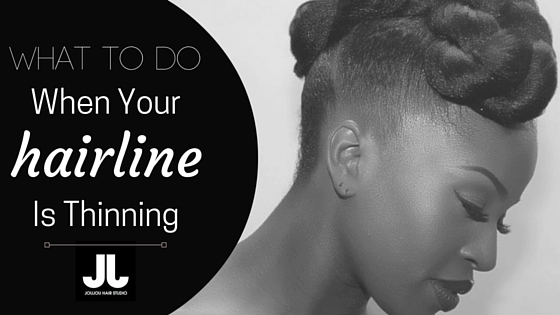 ThinningHairLine - Blog